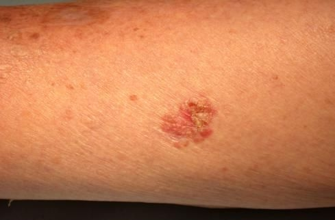 30 души са диагностицирани с рак на кожата за година в Пловдив