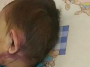 Десетки помагат на 2-годишния Васко, пребит от майка му ВИДЕО