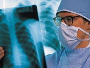 Безплатни изследвания за туберколоза започват от днес в Пловдив