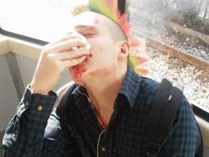 Скинари пребиха младеж заради цвета на косата му СНИМКА