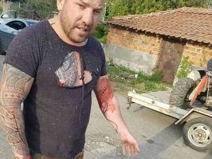 Динко в схватка с мигранти, показа се със скъсана блуза и окървавен СНИМКИ