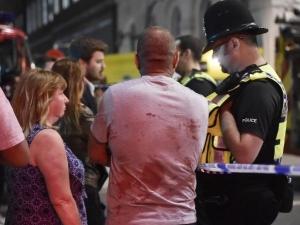 21 от ранените в Лондон са в критично състояние