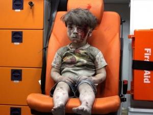 Детето от Сирия, трогнало милиони, днес се усмихва щастливо ВИДЕО