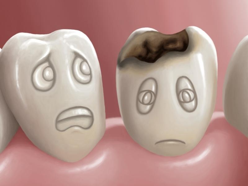 Българи създадоха устройство, което пази зъбите ни от кариеси