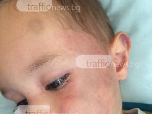 Проверки започват заради битото двегодишно дете в детска градина