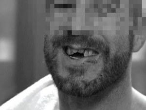 Брутално спънатият бензинджия край Пловдив - с изкъртени зъби и пострадала челюст