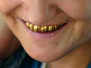 Крадец от Раковски удари дъното! Задигна златните зъби на жена, докато тя спи