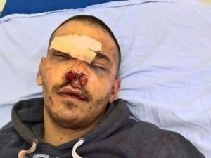 Зверски побой! Мъж е бит почти до смърт пред очите на приятелката му