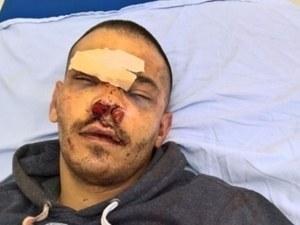 Двама в ареста за 72 часа заради бруталния побой на млад мъж след спор на пътя СНИМКИ