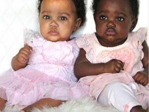 Изумителните бебета близначки с различен цвят на кожата станаха хит в Инстаграм
