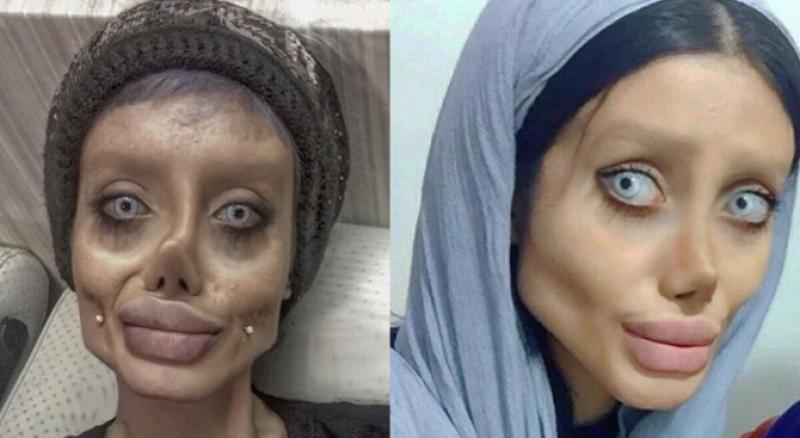 Момиче от Ирак се подложи на 50 пластични операции. Искала да прилича на Анджелина Джоли СНИМКИ