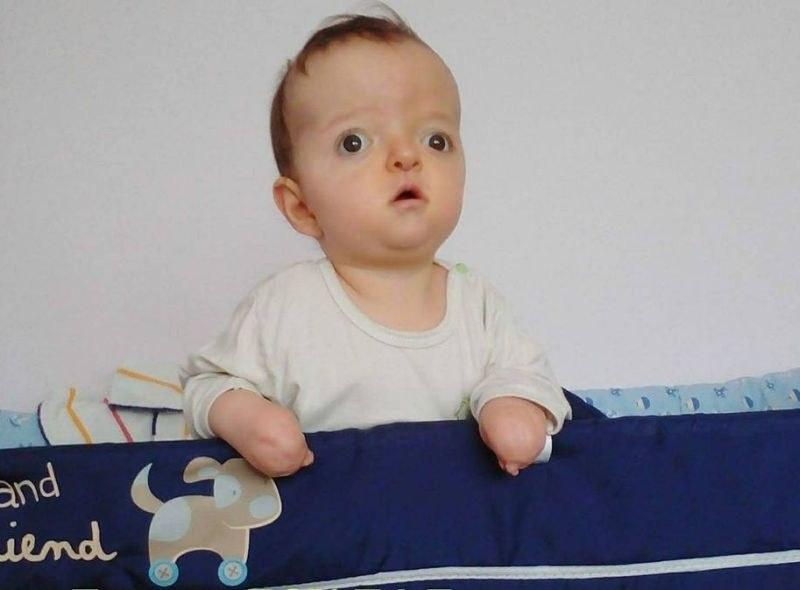 Митко е едно от трите деца в България с Болестта на счупените кукли! Да му помогнем