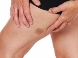 Няколко причини за необяснимите синини по тялото
