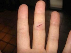 Защо ни боли толкова много, като си порежем пръста с лист хартия?