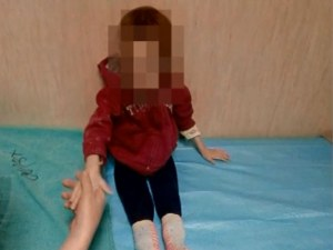 3-годишните близначета от Пловдив са с тегло на 6-месечни бебета ВИДЕО