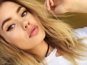 Добри новини: Моделът Кристин Илиева вече е по-добре, тъканите й бързо се възстановяват