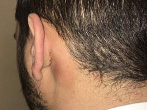 Млад мъж: Полицаи ме пребиха от бой във Велинград, заплашиха ме с изнасилване