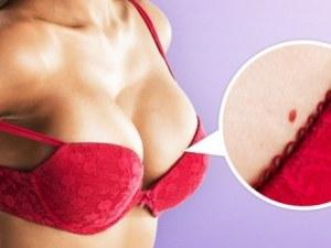 Как да махнем червените бенки по тялото си?