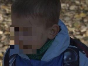 Агресия сред децата и в градините! 3-годишно дете бе издранo от свой връстник