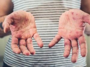 Заразата на морбили е ограничена, но вирусът още циркулира
