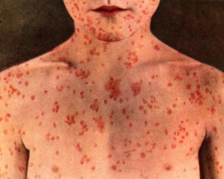 Зараза: 46 души са болни от морбили у нас, вижте къде и кои групи са най-застрашени