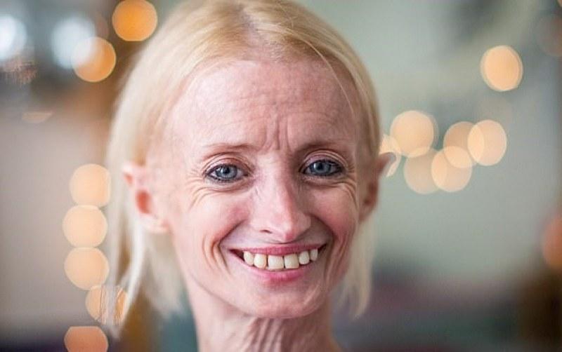 Една на 50 милиона! Това е най-старата 41-годишна жена СНИМКИ