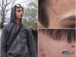 Вижте разказа на пребитото от полицаи 19-годишно момче от Карлово ВИДЕО