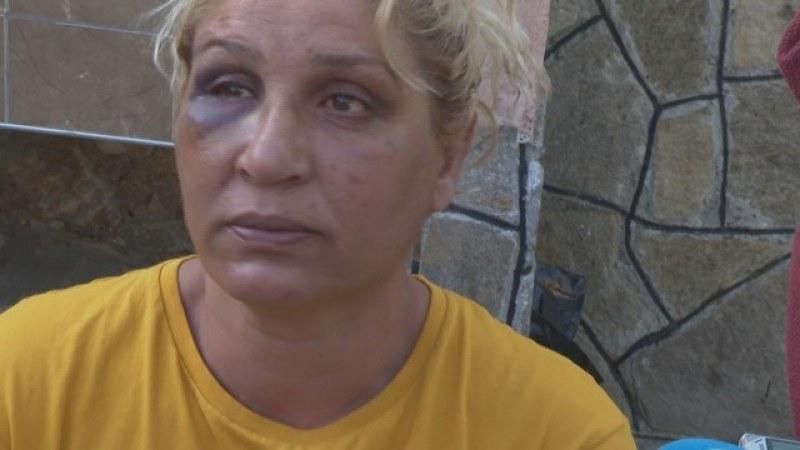 След арестите в Куклен: Двама от освободените се оплакаха от полицейско насилие
