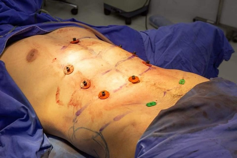 Вече може да си имплантирате плочки
