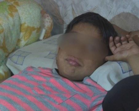 Семейството на детето със забита ножица в главата чакало линейка час и половина
