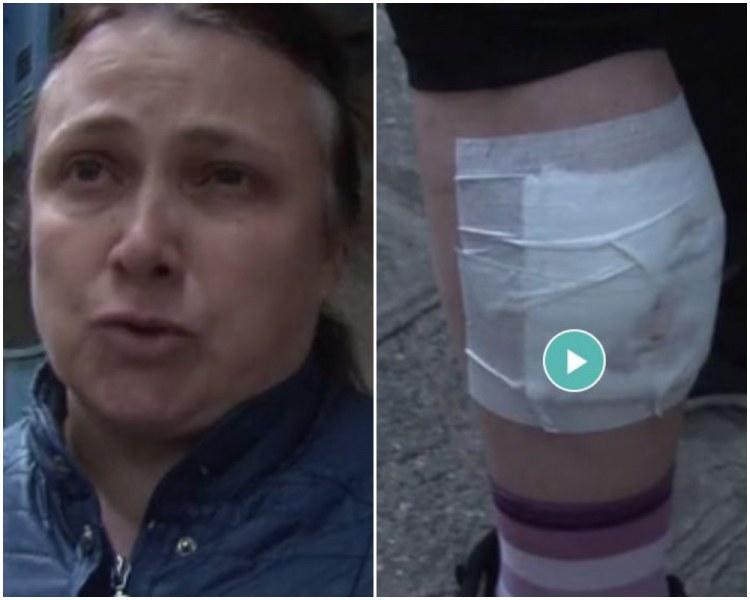 Жената, нападната от питбул, е с разкъсан крак! Собственикът: Пуснах го да посрещне майка ми