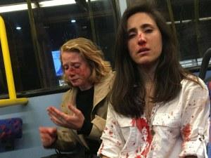След отказ от целувка… брутален побой над лесбийки в Лондон