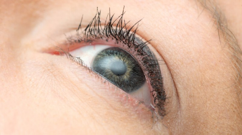 Извадиха няколко червея от окото на 14-годишно момиче от Пловдив
