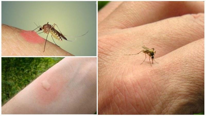 5 причини да сте магнит за комарите