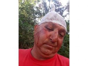 Счупени чене и ръка, 9 шева на главата: Семейство пребито от съседи в дома им