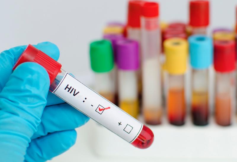 Смъртните случаи от ХИВ намаляват