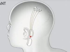 Илон Мъск иска да свърже мозъка с изкуствен интелект чрез имплант