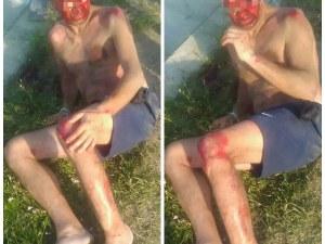 Очевидец: Кола блъсна мъж край Слънчев бряг и избяга СНИМКИ 18+
