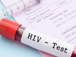 Учени твърдят, че са открили лечение срещу ХИВ