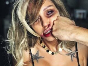 Джулиана Гани публикува снимки с обезобразено лице