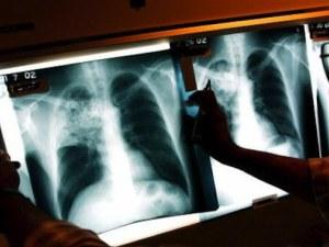 Цяла седмица ще ни преглеждат безплатно за туберкулоза