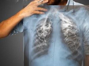 5 знака, че белите ви дробове се нуждаят от помощ