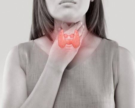 Хипотиреоидизъм – кои храни и напитки да избягвате?
