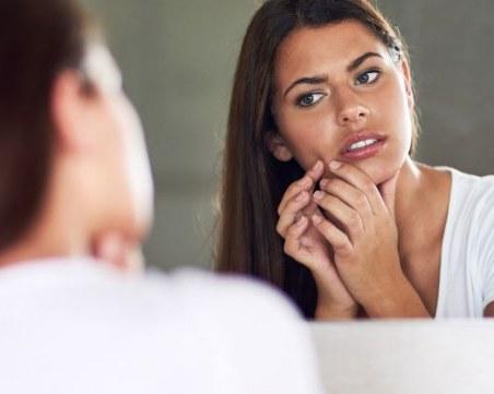 7 начина да излекувате акне без козметика