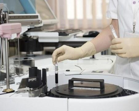 Частна лаборатория в Пловдив вече прави тестове за COVID-19