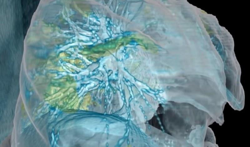 Американски лекари показват как COVID-19 поразява белия дроб