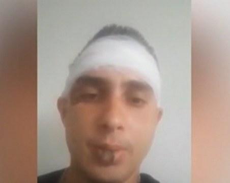 Строги мерки срещу престъпността в Литаково след зверския побой на музикант