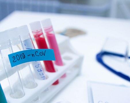 Италианско изследване: Коронавирусът може да предизвика инфаркт, а имунитетът е кратък
