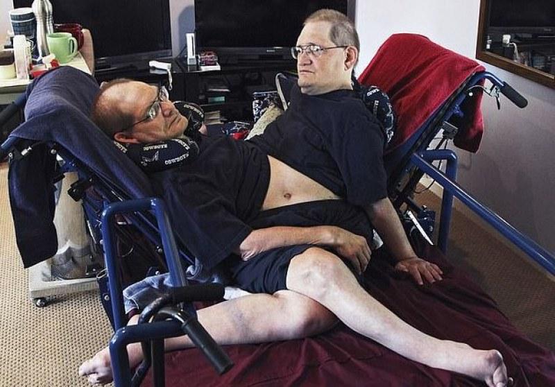 Починаха най-възрастните сиамски близнаци