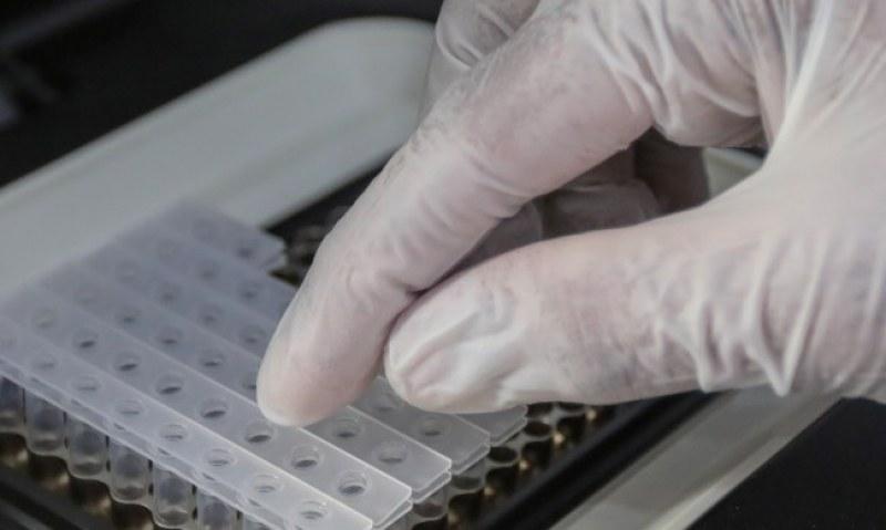 Израелски тест открива коронавирус за 30 секунди